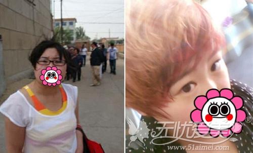 小莹在广州华美接受激光去肥胖纹手术前体重