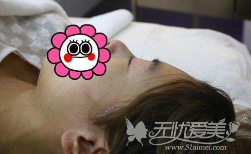 小莹在广州华美接受激光去肥胖纹手术