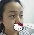 素人在湛江澳泰小综合隆鼻+双眼皮整形逆袭成人生女主角
