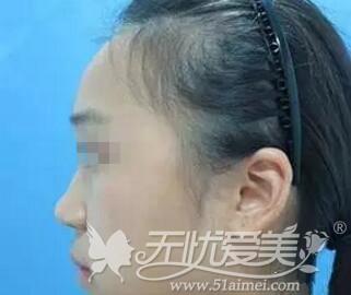 韩国韩式硅胶假体隆鼻术前侧面照