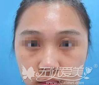 韩国韩式硅胶假体隆鼻真人案例