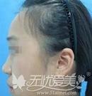 成都天使之翼金辉主任隆鼻案例:韩式生科硅胶假体隆鼻