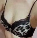 用真实顾客案例说话:南阳美莱假体隆胸不留疤