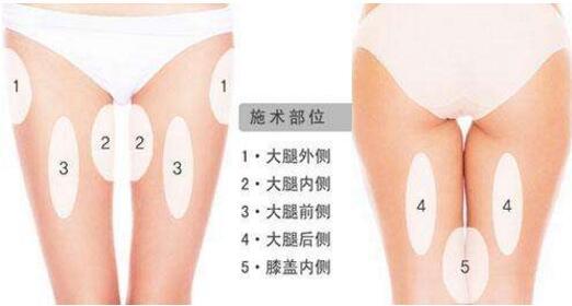 惠州伊美大腿吸脂的部位