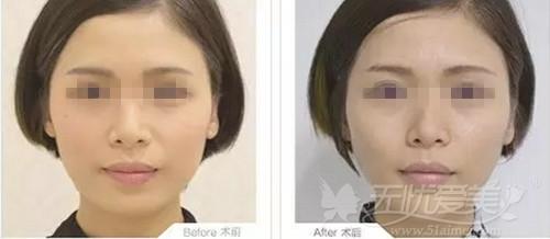 昆明梦想整形医院注射瘦脸针案例