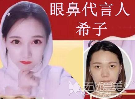 上海伊莱美眼鼻代言人:希子