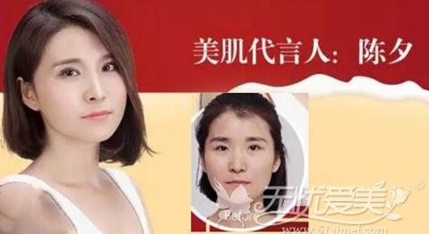 上海伊莱美美肌代言人:陈夕