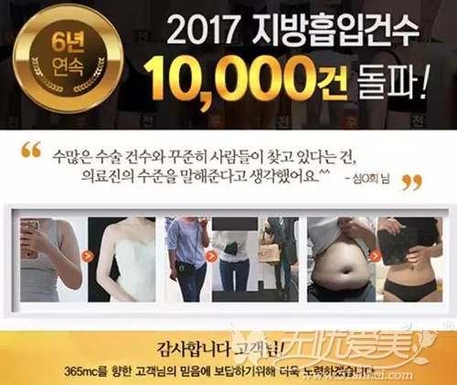 在韩国365mc吸脂医院吸脂手术