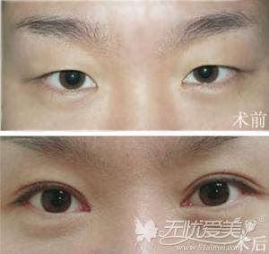 深圳伊婉微创无痕精雕切开法双眼皮手术案例