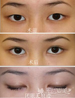 深圳伊婉精准定位三点小切口法双眼皮手术案例