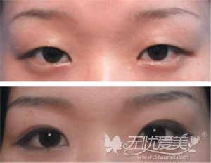 深圳伊婉隐形埋线法双眼皮手术案例
