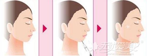 西安高一生玻尿酸注射丰下巴