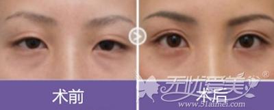 成都恒博整形医院双眼皮修复案例