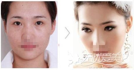 许昌博爱韩式双眼皮手术案例