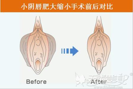 阴唇缩小术前后对比
