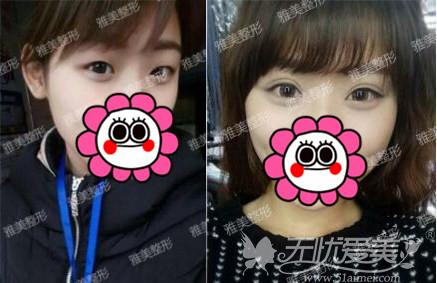 长沙雅美整形刘志刚双眼皮案例