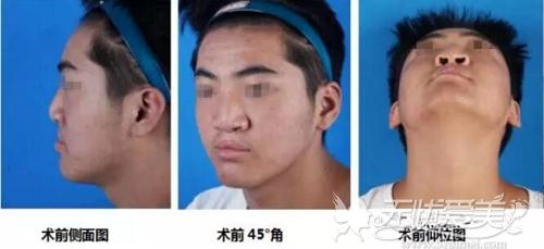 手术前小飞的鼻部样貌