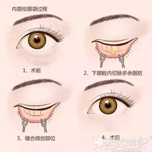 内路法去眼袋手术原理