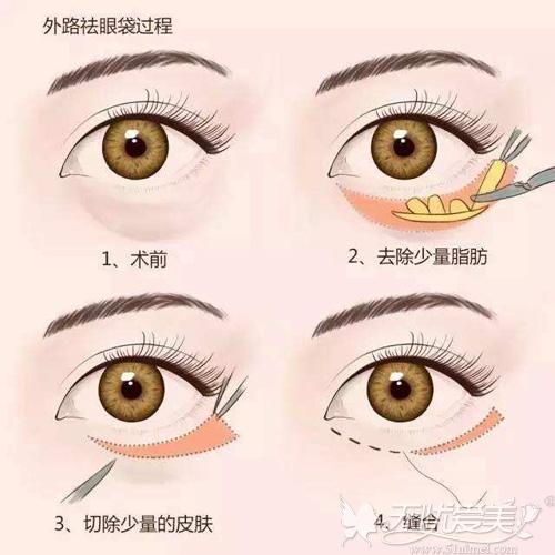 外路法去眼袋手术原理
