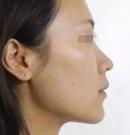 分享成都军大整容医院做的耳软骨+进口假体鼻综合恢复过程