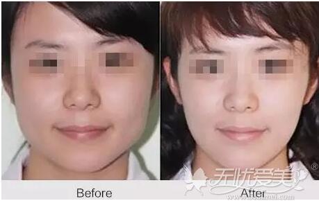 北京丽都瘦脸针案例