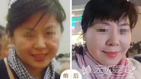 北京丽都PPDO埋线提升案例