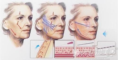面部线雕的手术原理