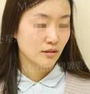 23岁车模在石家庄星源美天做了综合鼻整形后接广告接到手软
