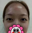 我在厦门薇格找罗垸兰做双眼皮修复手术后 拥有明媚大眼