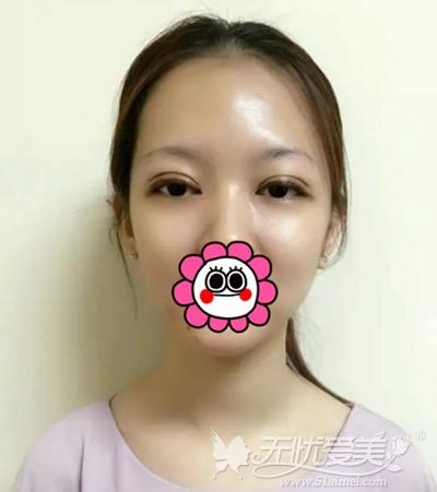 在厦门薇格做双眼皮修复手术后一天