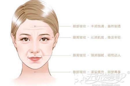玻尿酸主要功能是除皱