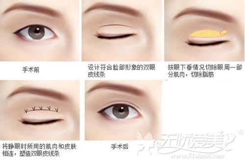 南京维多利亚V·精雕无痕双眼皮手术过程
