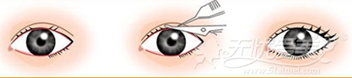 南京维多利亚八度翘睫双眼皮过程