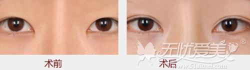 南京维多利亚无痕双眼皮手术案例