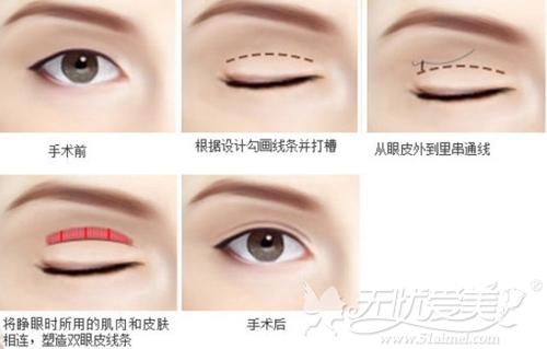 南京维多利亚韩式微创三点双眼皮手术过程