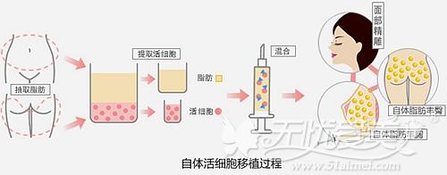 洛阳华美自体活细胞移植过程