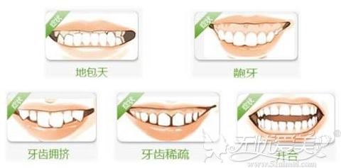 各种需要进行牙齿矫正的牙型