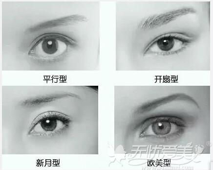 常见的双眼皮形状