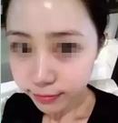 22岁的她在南京韩辰花费5千多注射玻尿酸找回青春 重拾自信