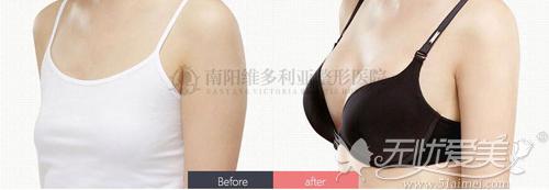 南阳维多利亚假体隆胸前后对比案例