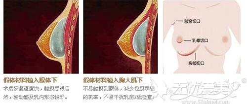 假体隆胸切口选择