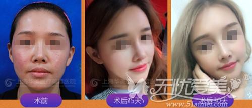 上海华美面部自体脂肪移植案例