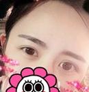 记录我找呼和浩特京美张诚专家做全切双眼皮手术恢复经过