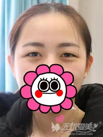 我在呼和浩特京美做双眼皮手术前