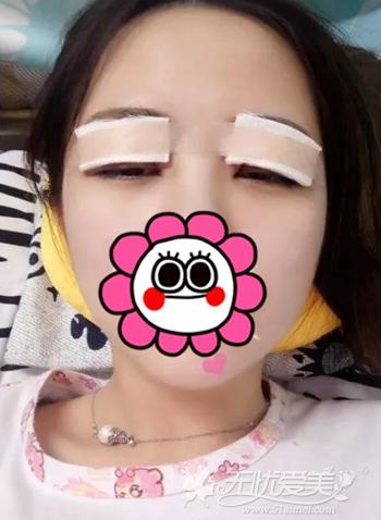 我在呼和浩特京美做双眼皮手术后3天