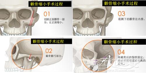 北京亚馨美莱坞颧骨整形