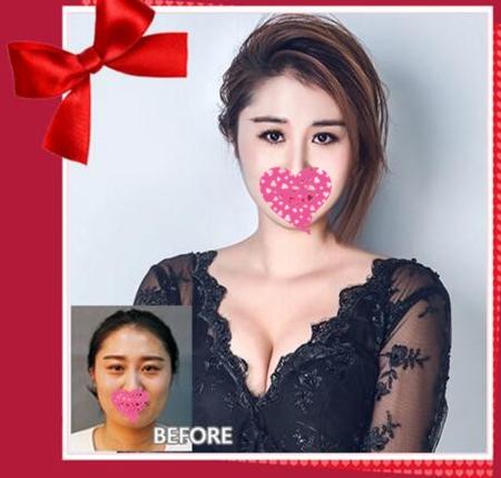 锦州锦美整形隆胸顾客案例