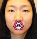 记录我在韩国艾恩做眼鼻综合+自体脂肪填充1个月恢复效果