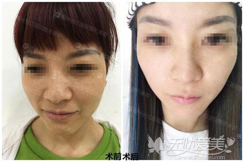 福州台江蜂巢皮秒祛斑案例