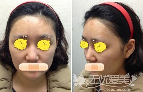 我韩国宝士丽做面部线雕提升前